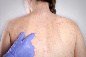penyakit rubella