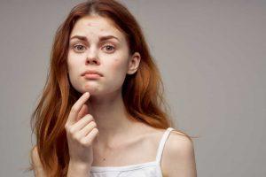 acne vulgaris atau jerawat